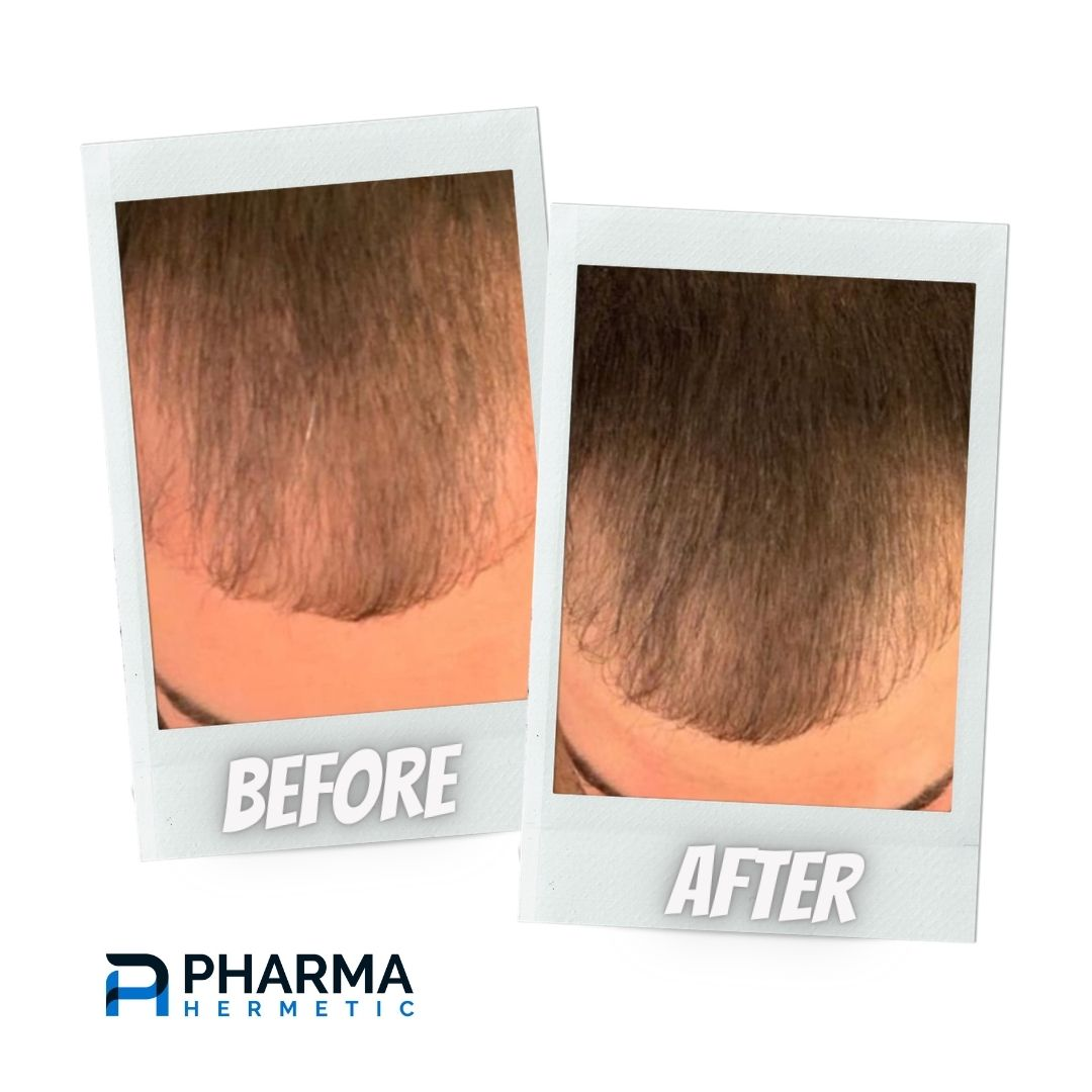 hair recovery treatment before & after